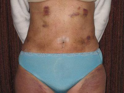 Fibrosis Masajes Post Quirurgicos